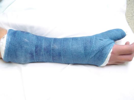 Phục hồi chức năng cho người bị gãy xương